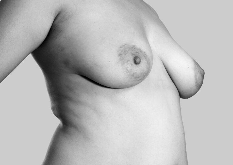 Behårede bryster