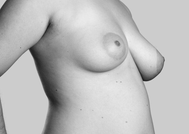Bløde bryster