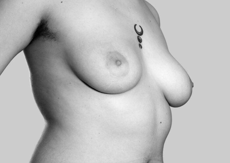 Bryster man kan røre