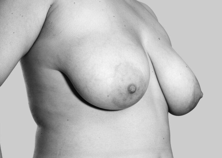 Definerende bryster