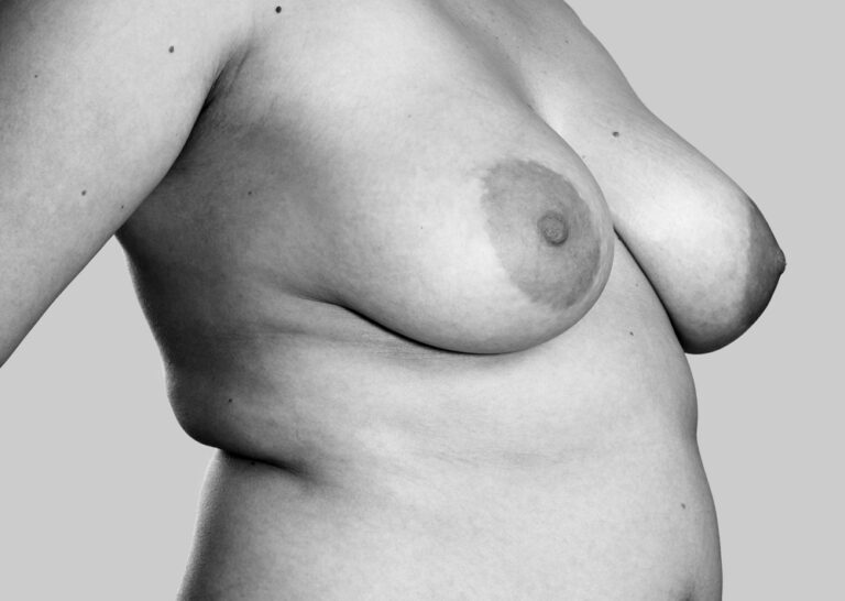 Dejlige bryster