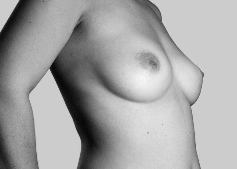 Elskede bryster