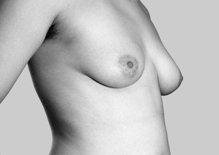 En håndfuld bryster