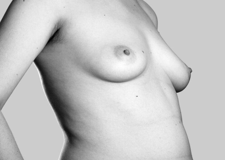 Foranderlige bryster