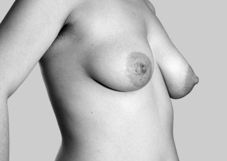 Gravide bryster