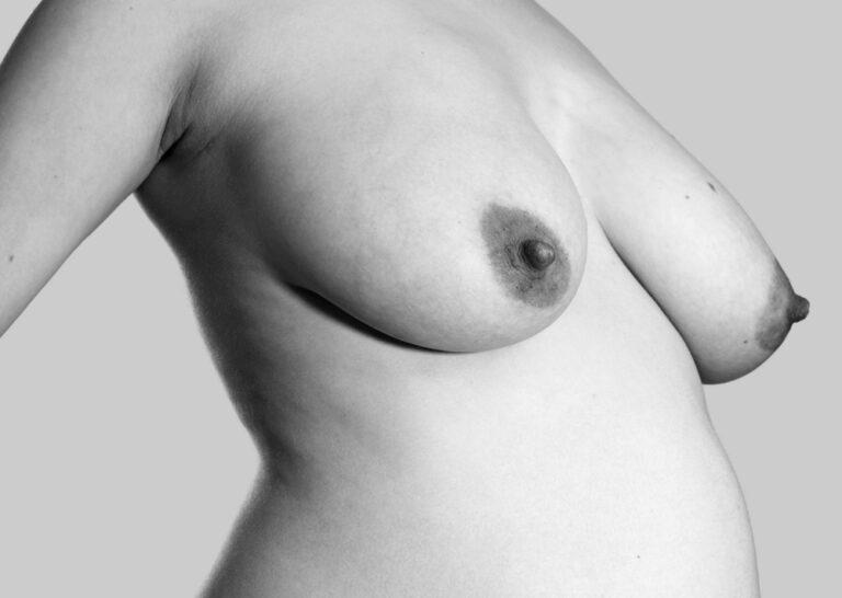Gravide bryster²