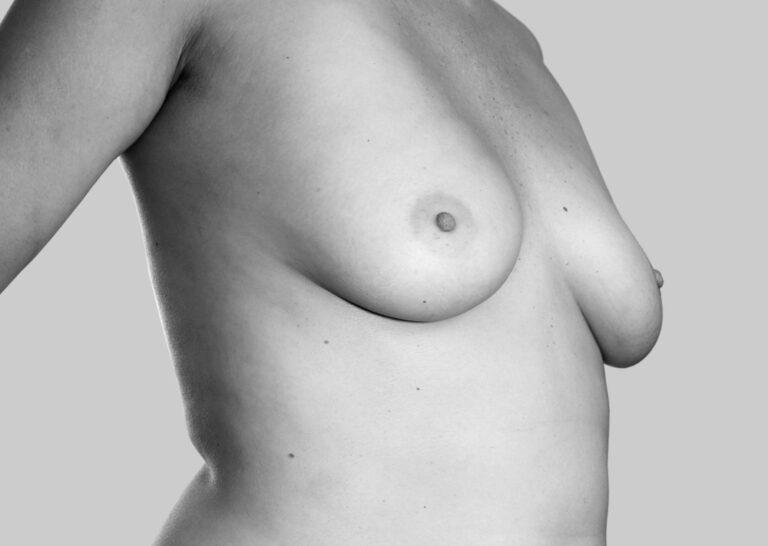 Kække bryster