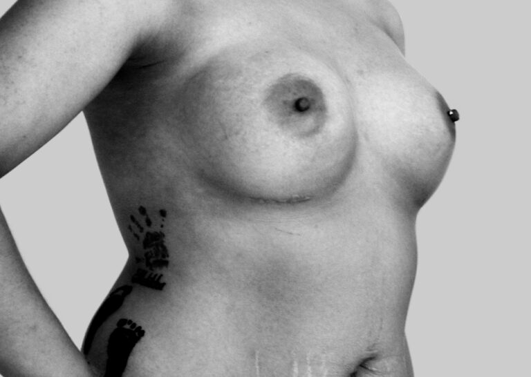 Købte bryster