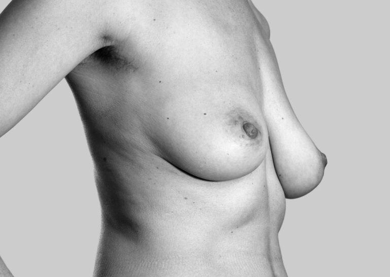 Mine gode aldersvarende bryster