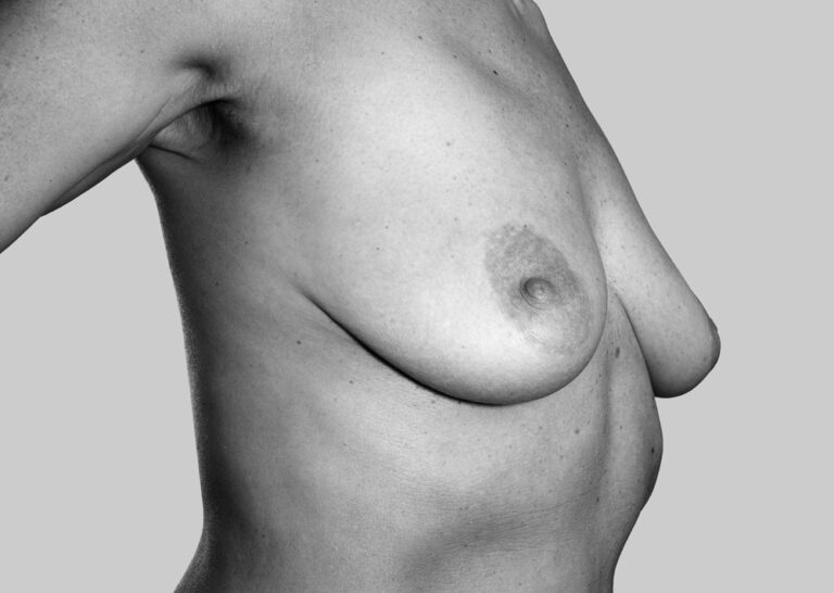 Naturlige bryster