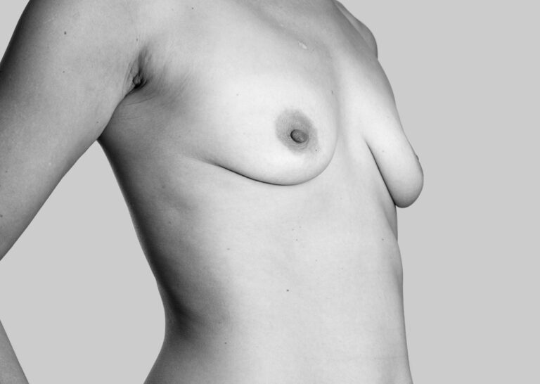 Nederen bryster