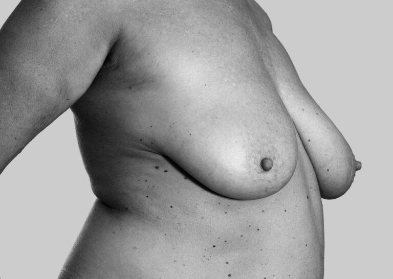 Pensionerede bryster