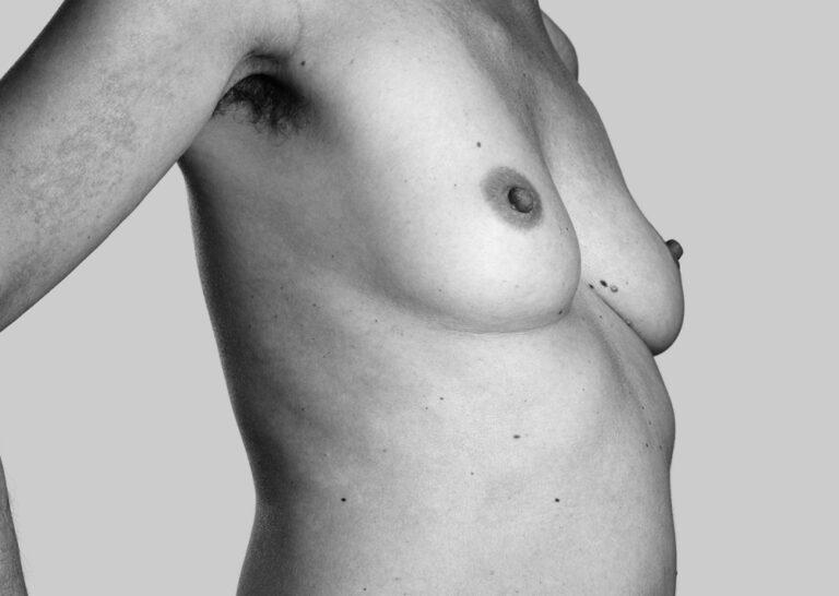 Selvsiddende bryster