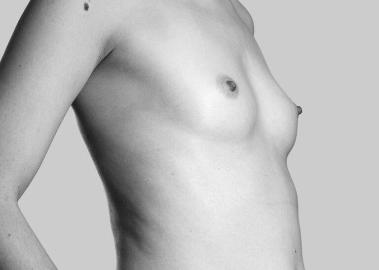 Små bryster