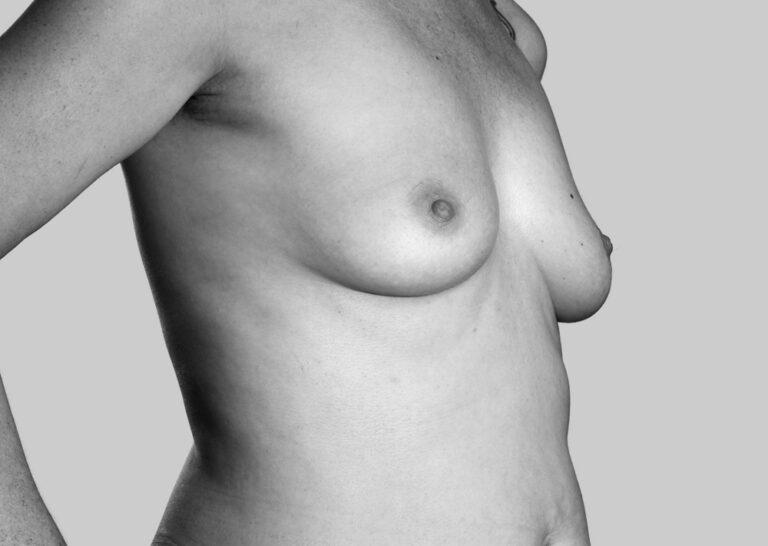 Smukke bryster