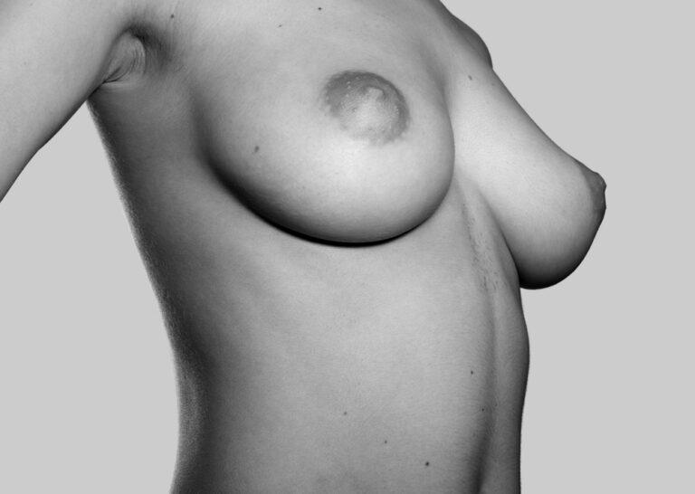 Tilfredse bryster