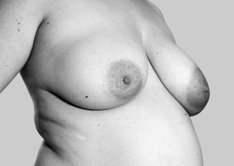 Tyngdekraftpåvirkede bryster