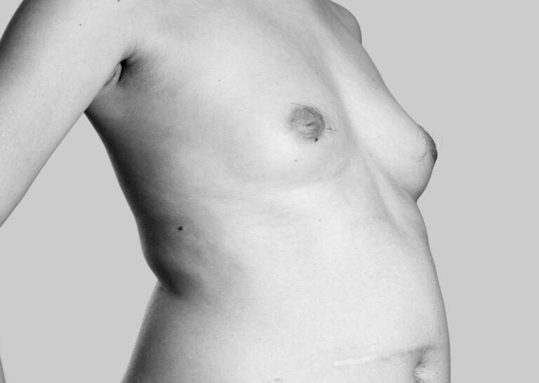 Uforanderlige bryster