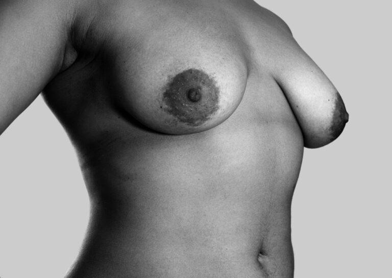 Velproportionerede bryster