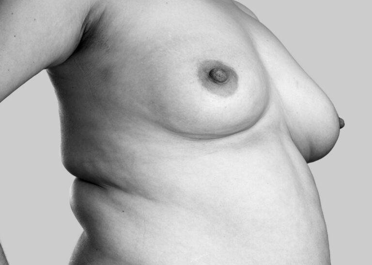 Virksomme bryster