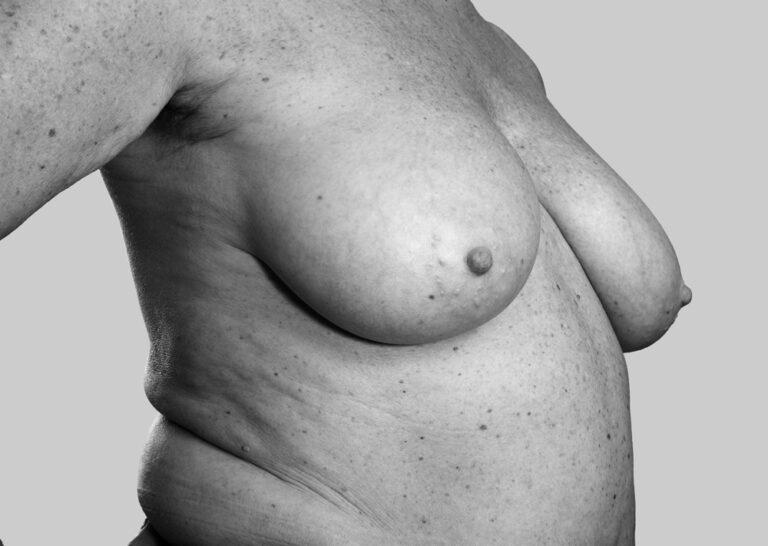 Voksne bryster